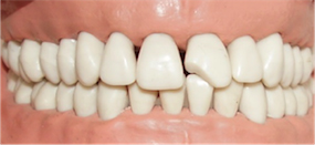 "1: When a tooth is damaged or has cavities ""Dentawi transparent crown forms"" can help."
